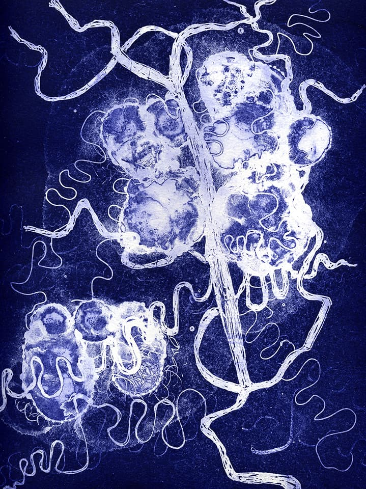 <strong>Brainscape 18</strong>, Susan Aldworth, aquatint and etching, 30 x 25 cms, 2005.